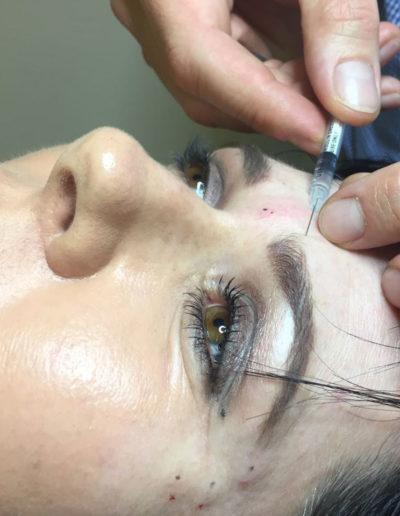 Botox-Gallery7