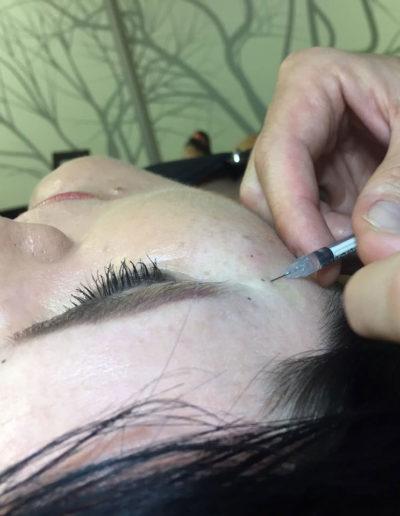 Botox-Gallery8