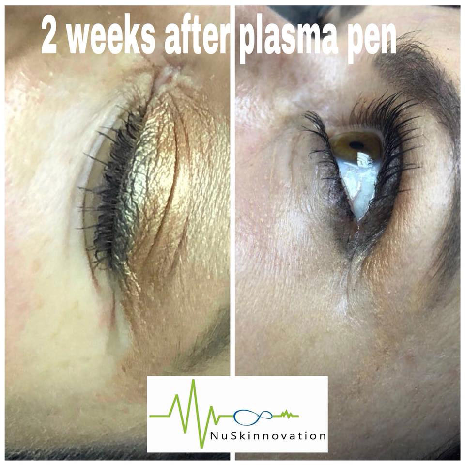 Premier Plasma Pen - NuSkinnovation PTY Ltd