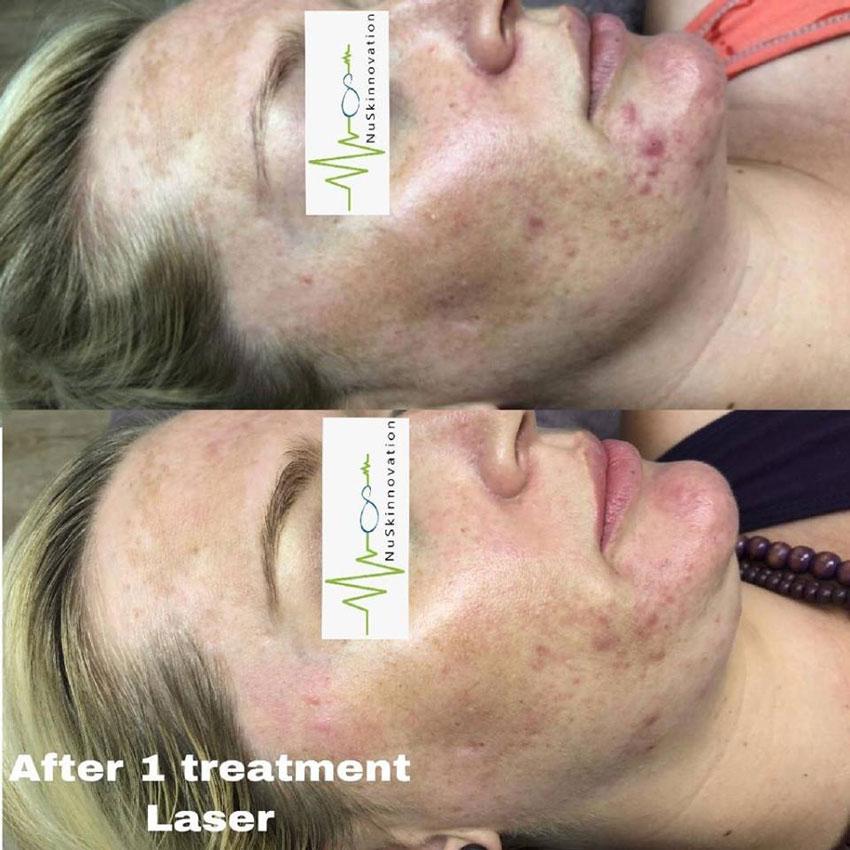 After 1 Treatment Laser Nuskinnovation Pty Ltd