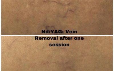 Nd:YAG Treatments