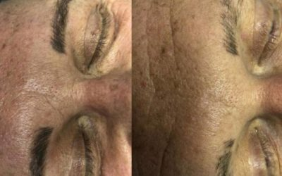 Brow Removal after one Session